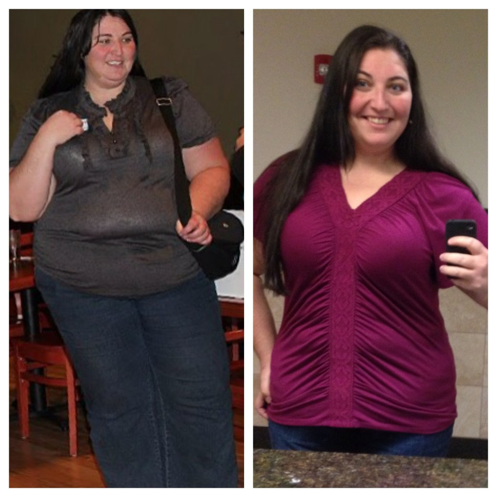 Dating after gastric bypass surgery